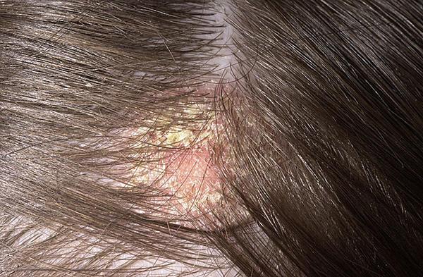 száraz vörös foltok a fejbőrön pikkelysömör hatékony otthoni kezelse
